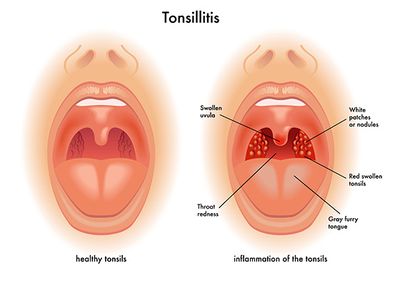 ear-nose-throat-tonsillitis