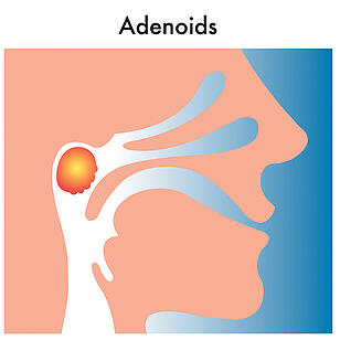 recurring-ear-infection-adenoids