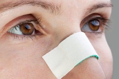 ent broken nose repair