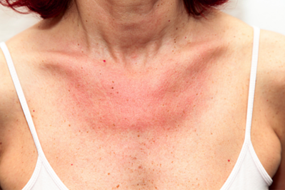 redness and swelling on chest